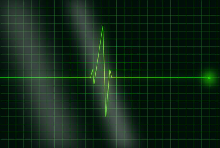 Des chercheurs anglais parviennent à mieux anticiper les crises cardiaques grâce à une intelligence artificielle