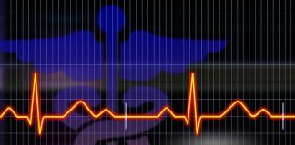 Cardiologs est une solution permettant de réaliser des diagnostics électrocardiogramme plus rapidement