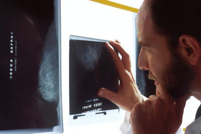 AP-HP et Imageens s'allient dans l'élaboration d'un logiciel d'analyse de données d'imagerie médicale