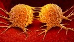 modèle deep learning métastase tumeur primaire étude recherche