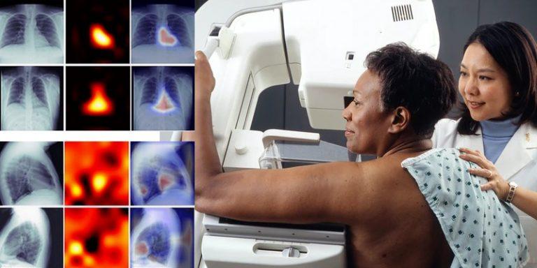 Des radiologues s'intéressent au deep learning pour diagnostiquer les calcifications coronaires