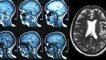 Deep Leaning classification tumeur cancer réseau neurones convolutifs