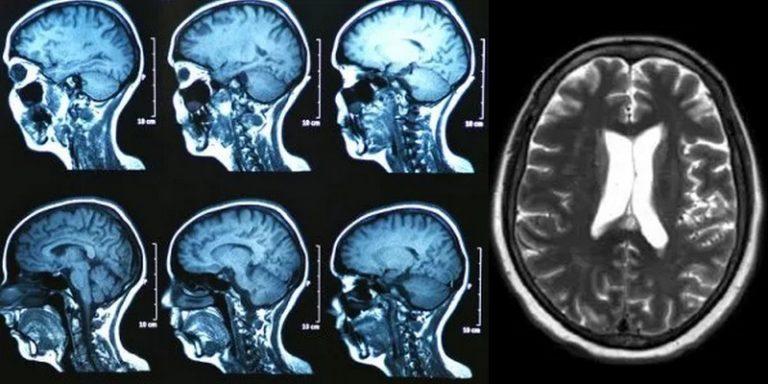 Un modèle de deep learning permet de classer avec précision six types de tumeurs intracrâniennes